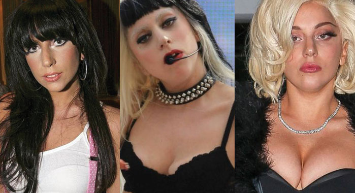 lady gaga before and after plastic surgery 2021