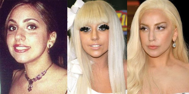 lady gaga plastic surgery before and after 2019