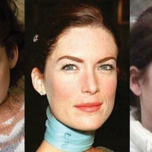 Lara Flynn Boyle Plastic Surgery