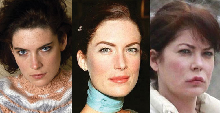 lara flynn boyle plastic surgery before and after 2018