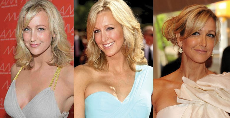 lara spencer before and after plastic surgery 2018