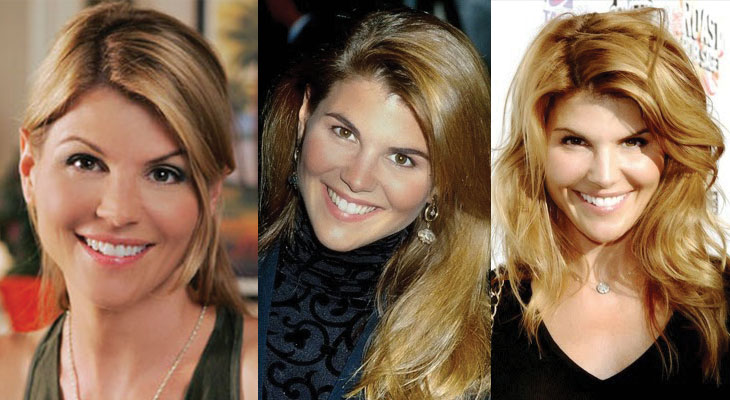 lori loughlin plastic surgery before and after 2020