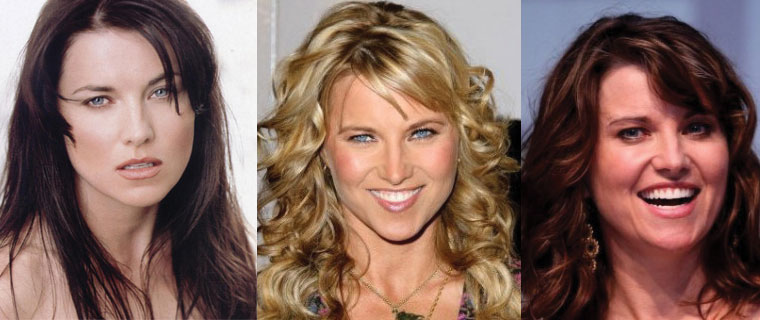 lucy lawless plastic surgery before and after 2020