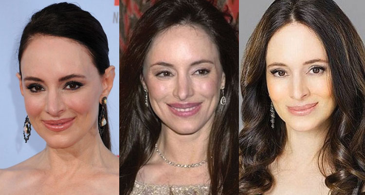 madeleine stowe plastic surgery before and after 2018