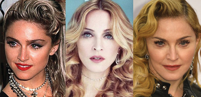 madonna plastic surgery before and after 2019