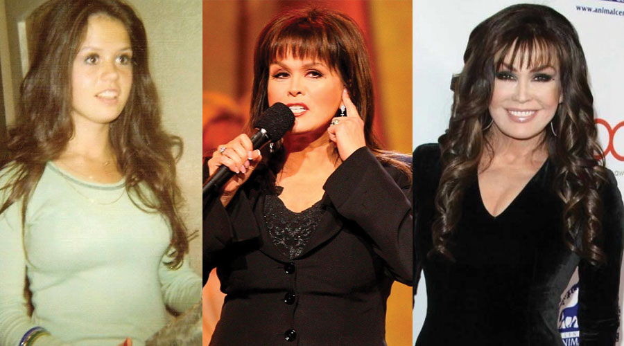 marie osmond plastic surgery before and after photos 2020