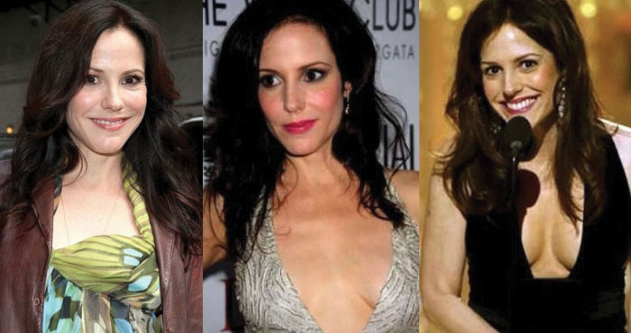 mary louise parker before and after plastic surgery 2020