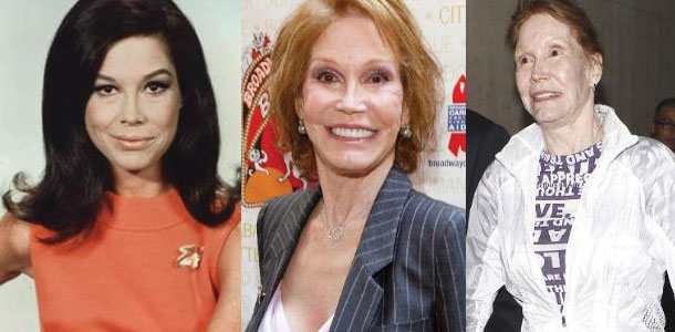 mary tyler moore before and after plastic surgery 2019