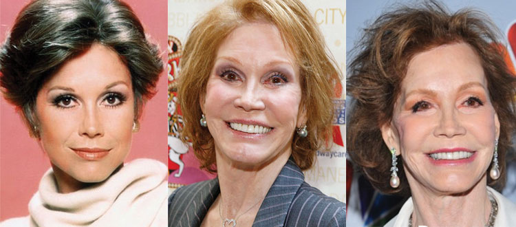 mary tyler moore plastic surgery before and after 2019