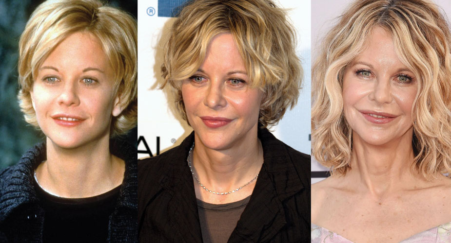 meg ryan plastic surgery before and after photos 1 2020