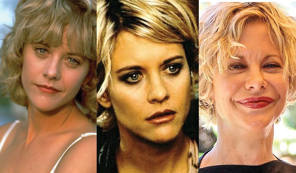 meg ryan plastic surgery before and after photos 2018