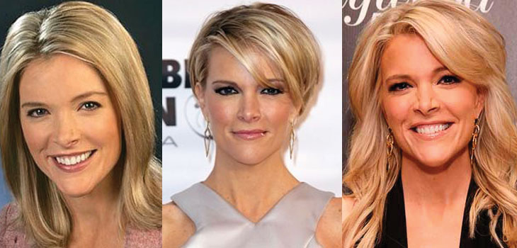 megyn kelly plastic surgery before and after 2018