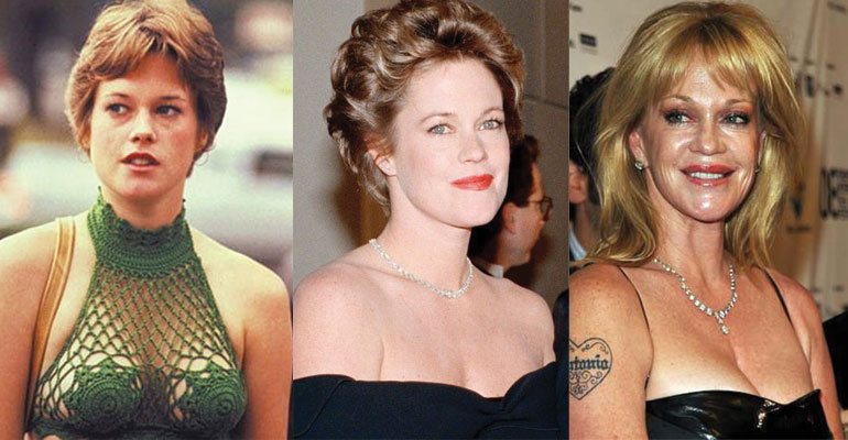 melanie griffith before and after plastic surgery 2021