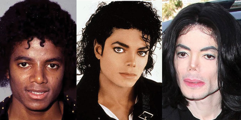 michael jackson plastic surgery before and after 2021