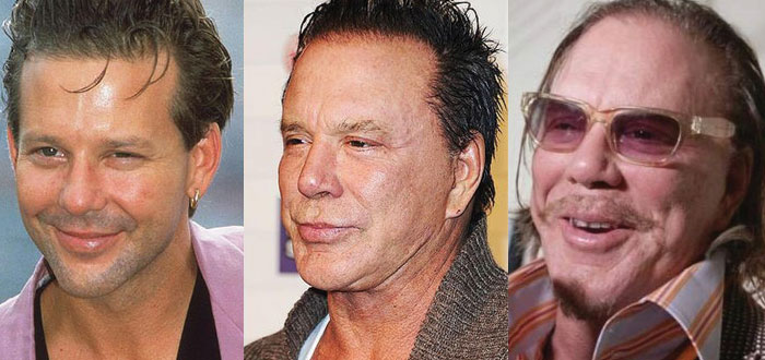 mickey rourke plastic surgery before and after 2021