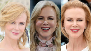 nichole kidman plastic surgery before and after