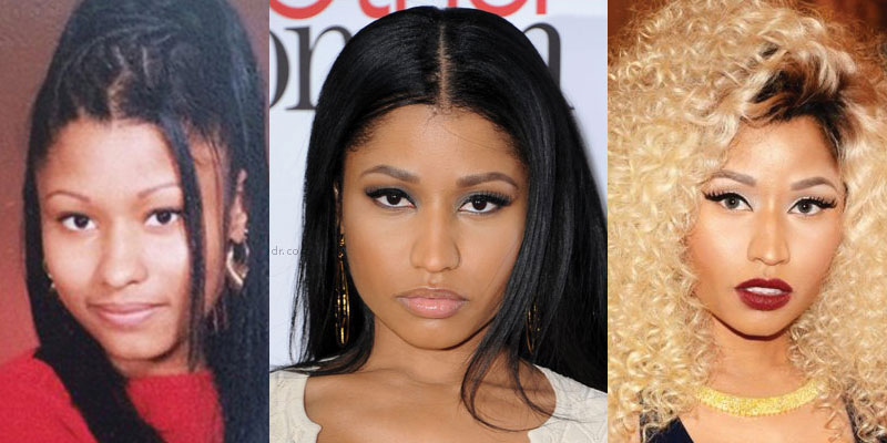 nicki minaj plastic surgery before and after 2020