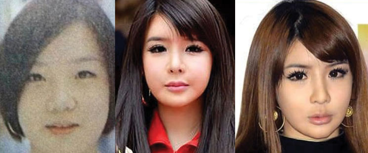 park bom plastic surgery before and after 2021