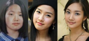 park min young before and after plastic surgery