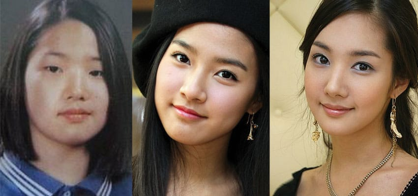 park min young before and after plastic surgery 2021