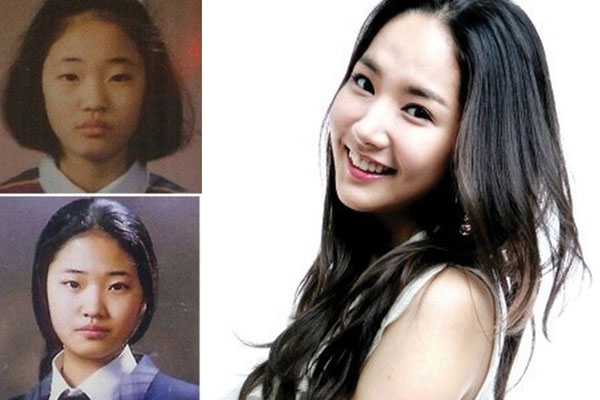 park min young plastic surgery before and after 2021