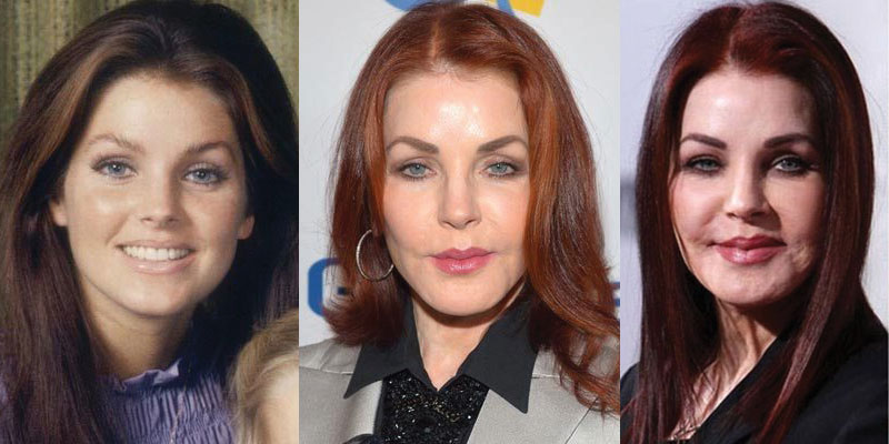 priscilla presley before and after plastic surgery 2018