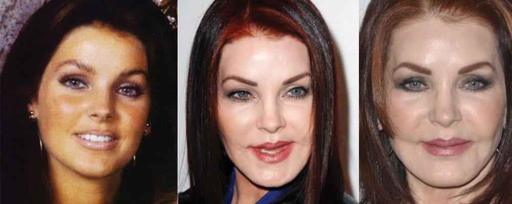 priscilla presley plastic surgery before and after 2018