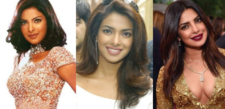 priyanka chopra before and after plastic surgery 2018