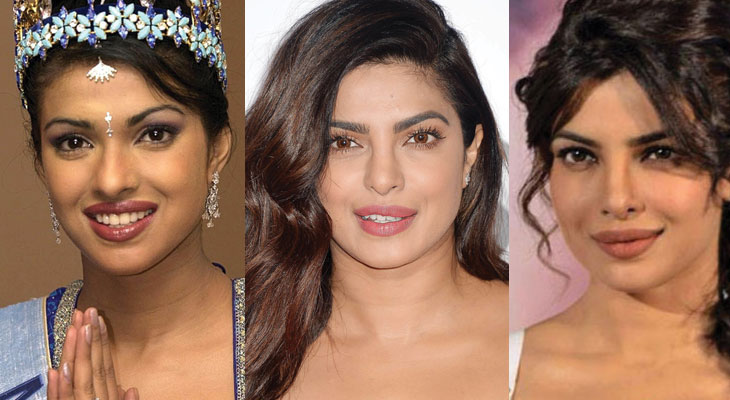 priyanka chopra plastic surgery before and after 2018