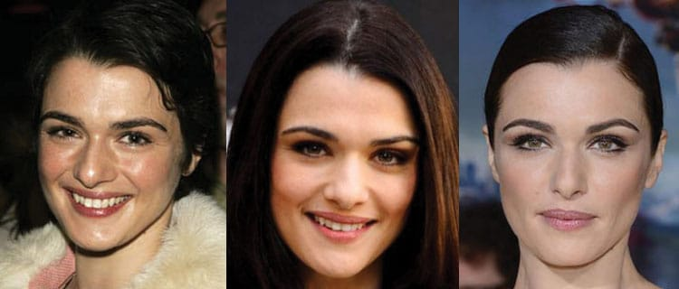 rachel weisz plastic surgery before and after 2021