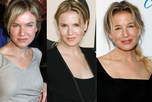 renee zellweger before and after plastic surgery 2019