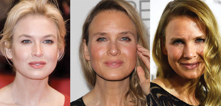 renee zellweger plastic surgery before and after 2019