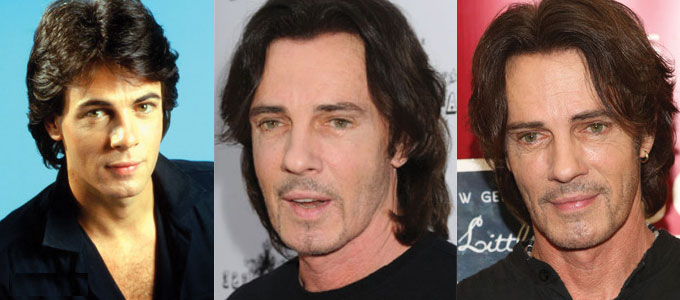 rick springfield plastic surgery before and after 2018