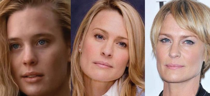 robin wright penn plastic surgery before and after 2018