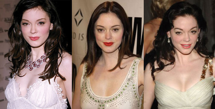rose mcgowan before and after plastic surgery 2018