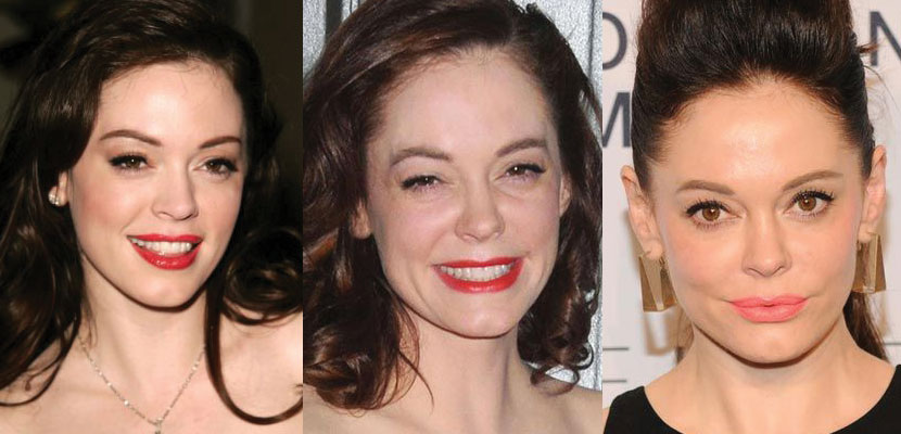 rose mcgowan plastic surgery before and after 2018