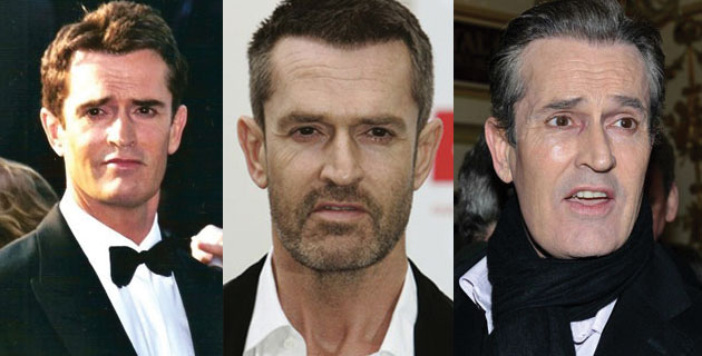rupert everett plastic surgery before and after