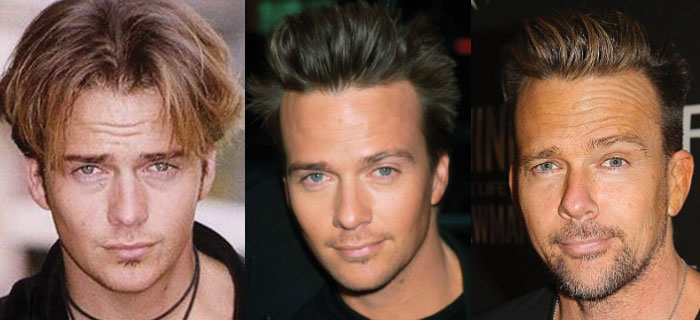 sean patrick flanery plastic surgery before and after 2019