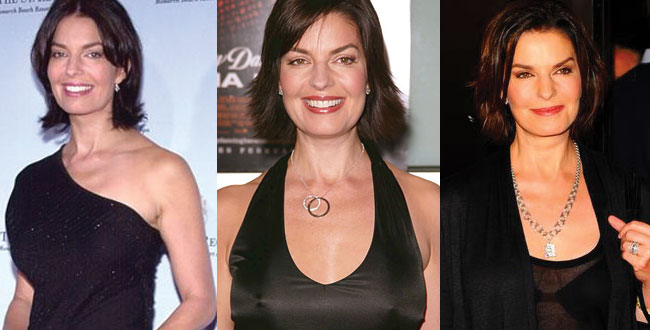 sela ward before and after plastic surgery 2019