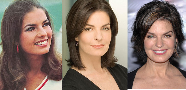sela ward plastic surgery before and after 2019