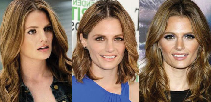 stana katic plastic surgery before and after 2018
