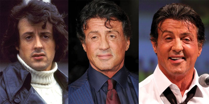 sylvester stallone before and after plastic surgery 2018