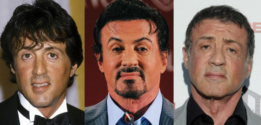 sylvester stallone plastic surgery before and after 2018