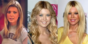 tara reid plastic surgery before and after