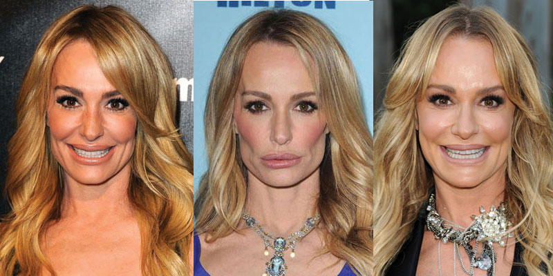 taylor armstrong plastic surgery before and after 2018