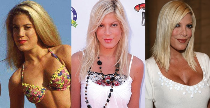 tori spelling before and after plastic surgery 2020