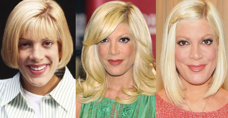 tori spelling plastic surgery before and after 2020
