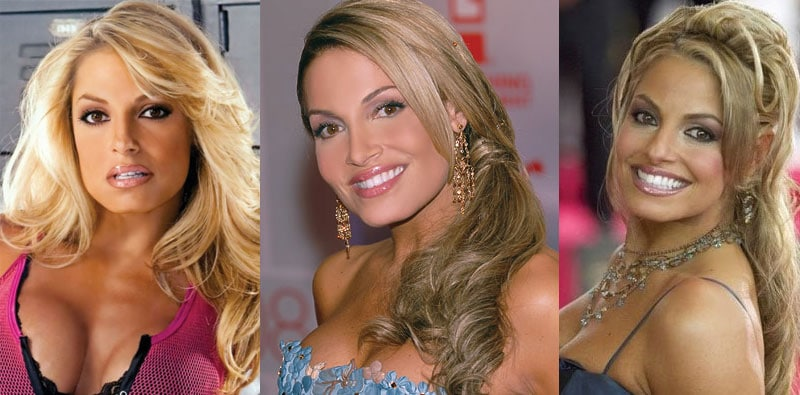 trish stratus plastic surgery before and after 2018